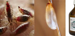 Позволяет ли перекись водорода вывести вшей и гнид