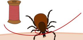 Как можно легко вытащить присосавшегося клеща ниткой