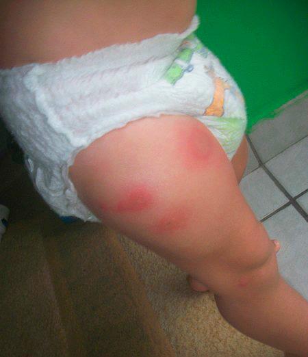 Пример аллергии на укусы клопов
