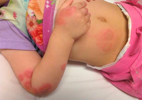 Аллергическая реакция у ребенка на укусы клопов