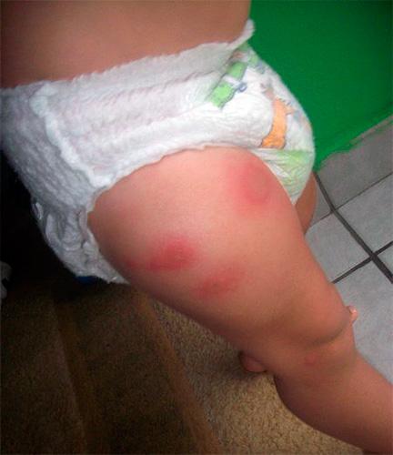 аллергия после антибиотиков фото