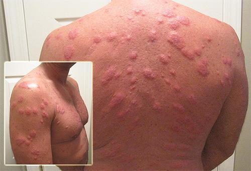 аллергия после 50