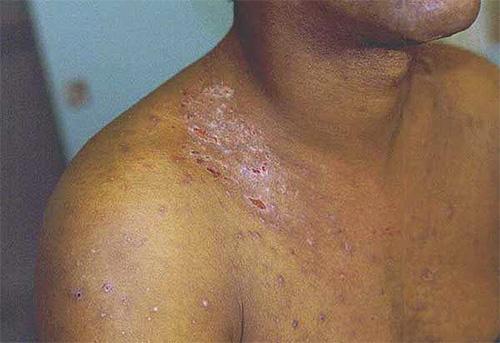 На фотографии показан пример проявления волынской лихорадки