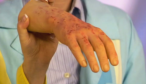 Признаки сыпного тифа на коже руки