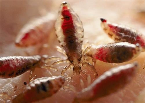 паразиты в волосах человека симптомы