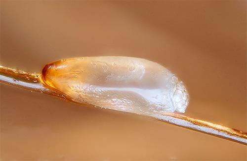 Фотография гниды на волосе под микроскопом