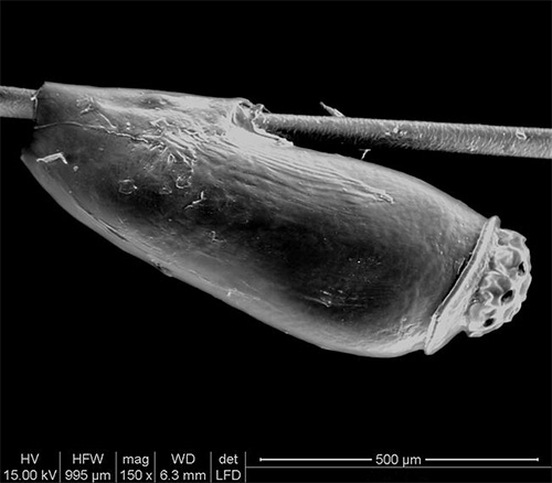 Так выглядит гнида под электронным микроскопом