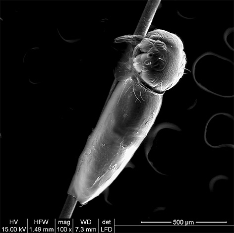На фото личинка вши вылупляется из гниды