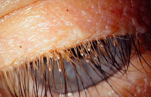 Pubic Lice Causes Symptoms Treatments amp Look like