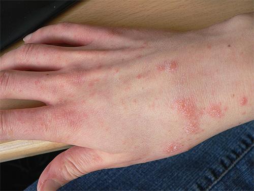 подкожные паразиты у человека их лечение фото