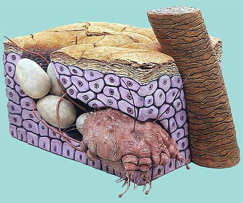 Самка клеща и ее яйца в толще кожи