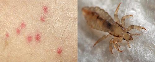 Укусы бельевых вшей заметно отличаются от укусов других насекомых. Как их распознать - узнаем дальше.