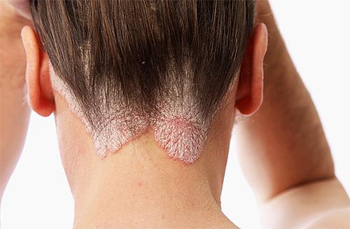 Симптомы кожного заболевания псориаза вполне могут проявляться на фоне сильных переживаний