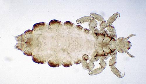 Личинка человеческой вши под микроскопом