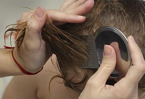 С помощью специальных гребней от вшей можно эффективно удалять гниды из волос