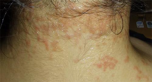 Если кожа склонна к аллергическим высыпаниям, то Фул Маркс надо использовать с осторожностью