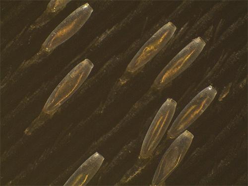 Гниды платяной вши прикреплены к ворсинкам ткани