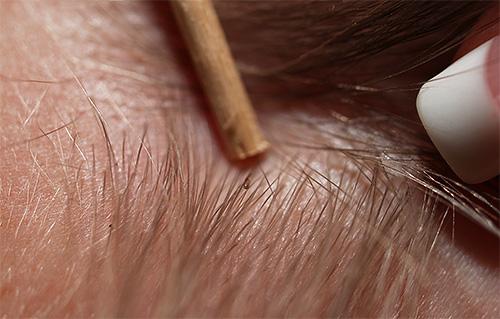 Для обнаружения вшей нужно прежде всего тщательно осмотреть волосы ребенка