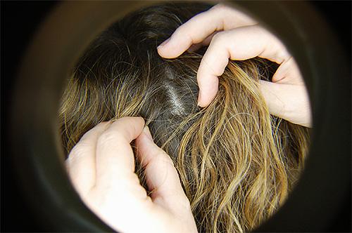 Регулярный осмотр волос поможет выявить заражение вшами еще на начальном этапе