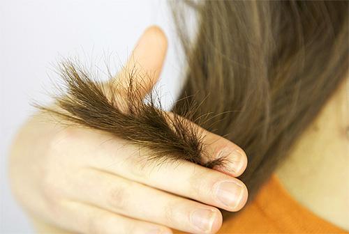 Если уксус применять неправильно, то можно повредить волосы и кожу головы