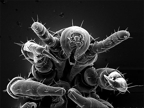 Бельевая вошь под электронным микроскопом