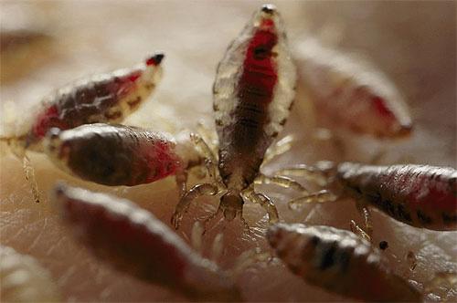Каждая вошь во время кормления высасывает не так много крови, но при большом количестве паразитов и массовых укусах такие потери крови могут быть существенными