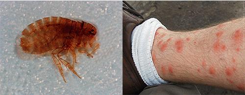 Песчаные блохи могут причинять серьезный вред здоровью: в чем опасность этих паразитов и как от них себя защитить мы дальше и поговорим