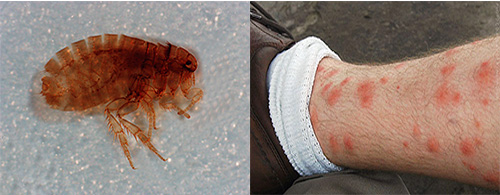 кишечные паразиты у человека видео