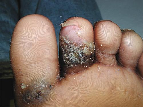 Нарыв и отслоение кожи вследствие укуса песчаной блохи