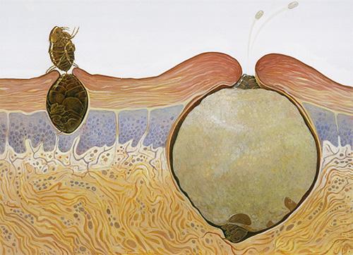 На картинке показано, как ведет себя самка песчаной блохи в теле человека