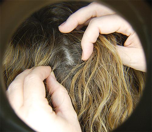 Поговорим о правильном и эффективном лечении от вшей и гнид на голове