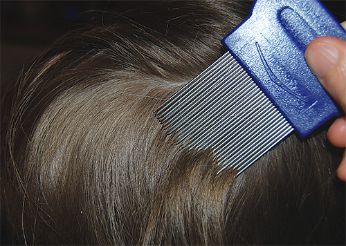 От приема редуксина могу выпадать волосы