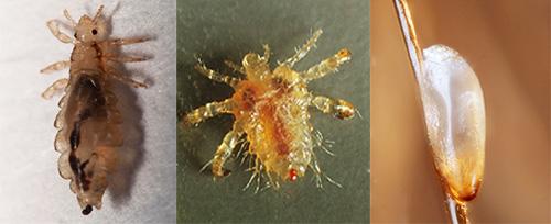 Знакомимся с особенностями внешнего вида и биологии различных видов вшей, посмотрим, как они выглядят и как размножаются.
