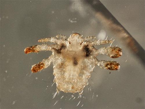 Лобковая вошь под микроскопом