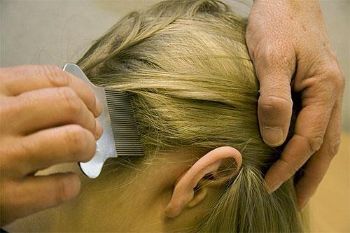 Вши и гниды вычесываются с волос прядь за прядью.
