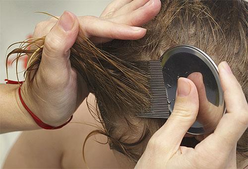 Применяя гребень от вшей, волосы ребенка нужно вычесывать тщательно, прядь за прядью