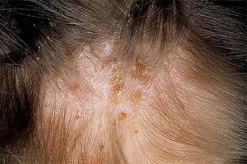симптомы паразитов в организме человека что делать