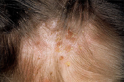 Корочки на коже головы у ребенка фото
