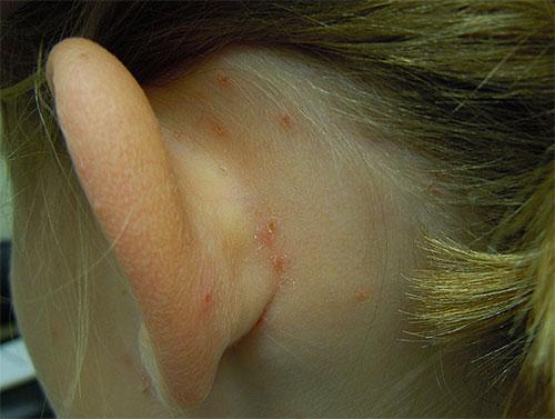 Наиболее легко такие укусы заметить на шее и за ушами ребенка