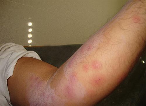 Первые укусы постельных клопов в квартире часто принимают за укусы комаров или аллергию