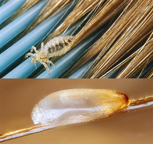 чем убить паразитов в организме человека