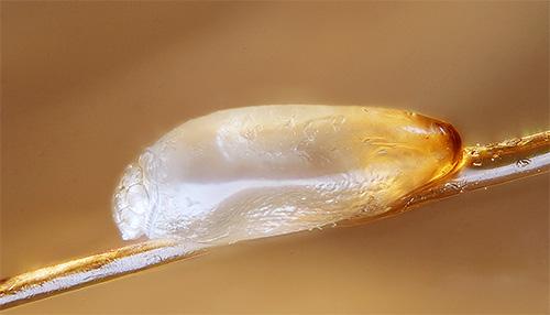 Гниды вшей защищены особой оболочкой, поэтому убить их не способны даже многие современные средства