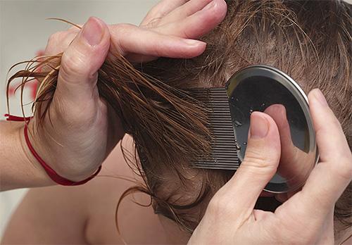 После обработки головы спреем вшей и гнид нужно тщательно вычесать гребнем