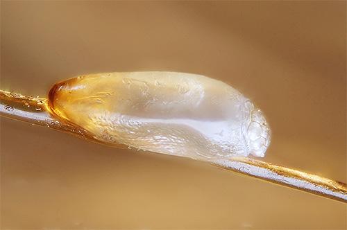 Обнаруженные на волосах гниды однозначно свидетельствуют о наличии вшей