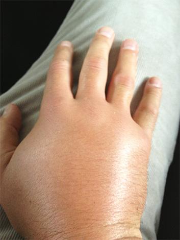 Мандоротоксин, входящий в яд азиатского шершня, вызывает быстрый отек тканей