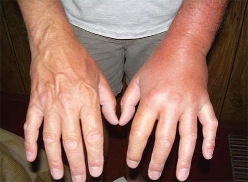 При укусах шершня отек тканей может быть очень сильным