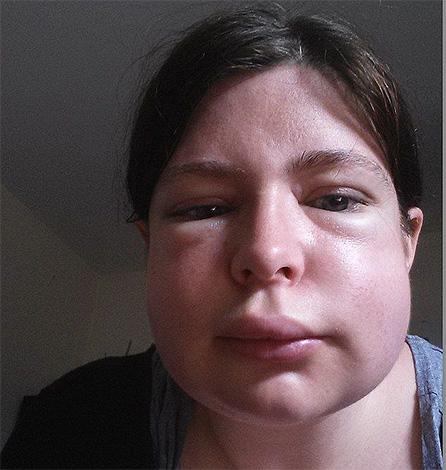 Если человек имеет склонность к проявлениям аллергии на укусы насекомых, то после укуса шершня у него может развиться отек Квинке.