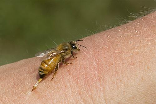 Как яд пчелы, так и яд шершня отличаются высокой аллергенностью
