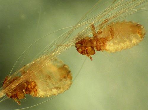 обнаружить паразитов человека