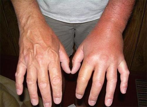 На фотографии - рука, опухшая после укуса шершня